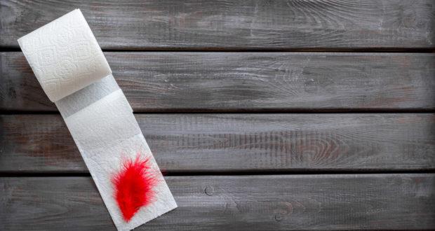 Blut Im Stuhl – Ab Wann Geht Es Zum Arzt – Ratgeber